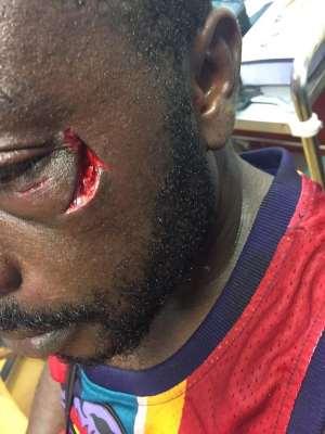 Ghanaian Boxer Patrick Allotey Beat Up Kotoko Supporter During Hearts Match