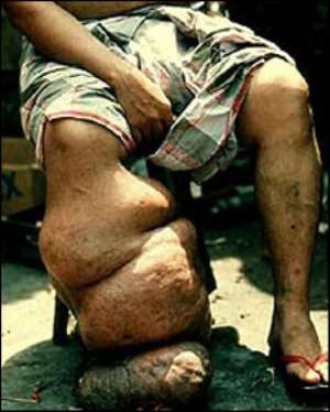 'End in sight' for elephantiasis