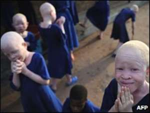 Albinism is a health condition in which a person has little or no skin pigment