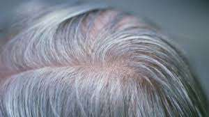 Solving A Biological Puzzle: How Stress Causes Gray Hair