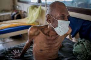 A tuberculosis patient in Africa