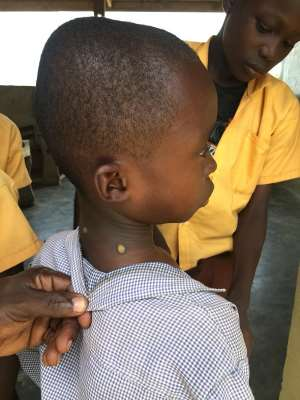 Birim Central Health Directorate Calls For More Resources To Fight Yaws