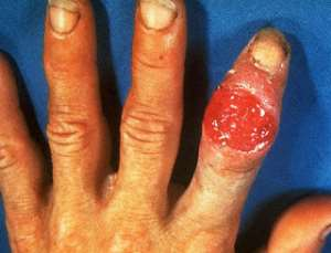Primary syphilitic infection of the finger