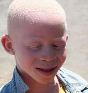 Stop Stigmatizing Persons With Albinism- Modern Women Of Wisdom International
