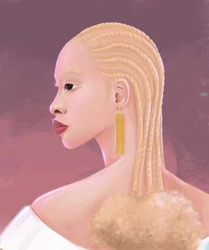 Why Albinism Is A Disability