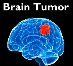 Brain Tumor Can Strike At Any Age, Be Observant