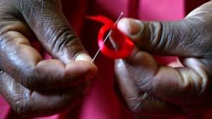 HIV Does Not Always Result In AIDS