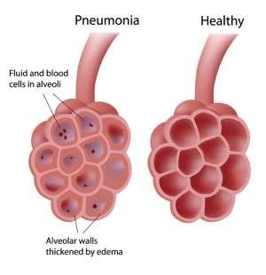 Ashanti Region records more Pneumonia cases