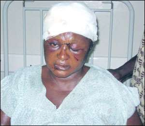 Victim! Janet Dwamena Agyapomaa on hospital bed