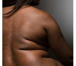 Study finds obesity can 'lead to lack of vitamin D'
