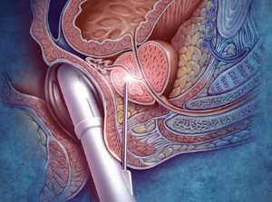 Study Reveals Similar Survival Of African American & White Men With Prostate Cancer
