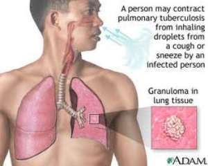 Guidelines for Clinical And Operational Management Of Drug-Resistant Tuberculosis