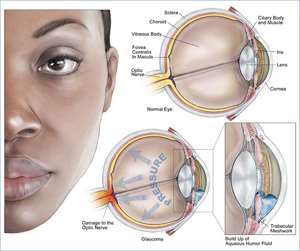 Glaucoma Leading Cause Of Blindness