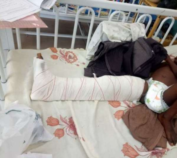 UER Hospital Records High Cases Of Fractures In children