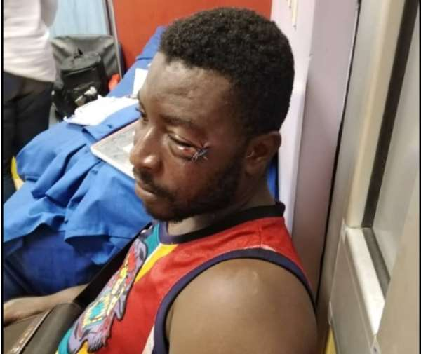 Assaulted Football Fan Denies Provoking Boxer Patrick Allotey