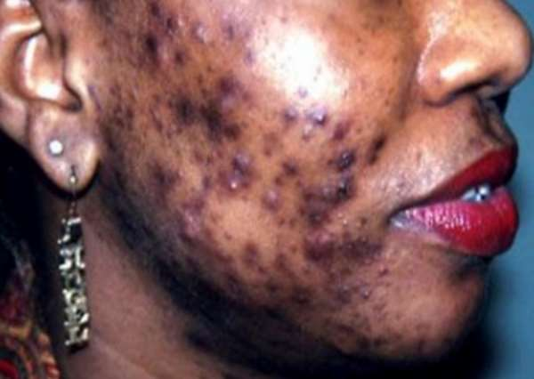 The Identity Crisis Of Skin Bleaching