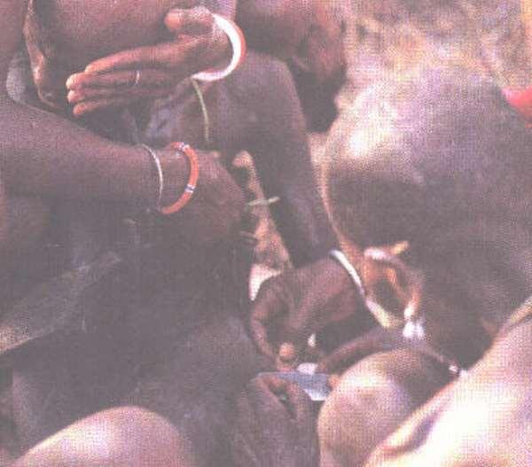 Circumcision may reduce HIV risk