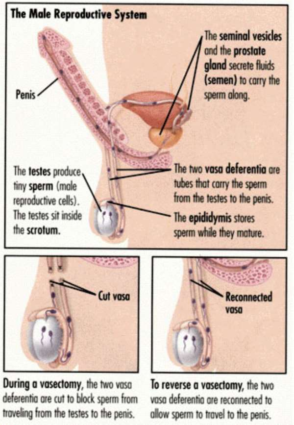 Breaking down the barriers of vasectomy ...
