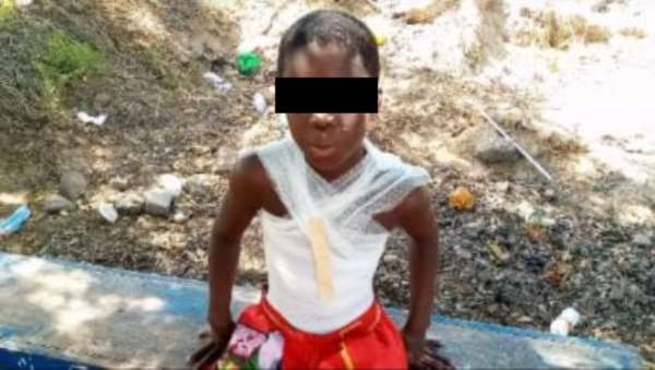 Wee smoker vowed to kill me – 10-year-ol boy who was set ablaze reveals