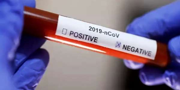 Tamale: Six Infected Persons Test Negative, Await Second Test
