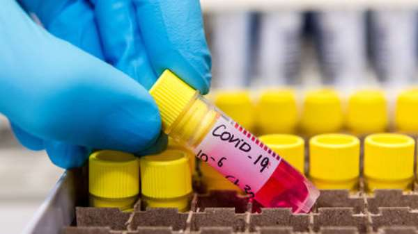 COVID-19: Cases Hit 1,550 With 271 More Cases