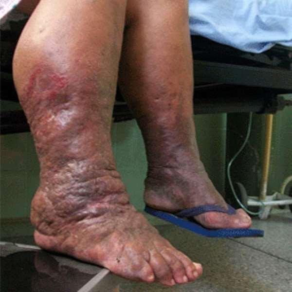 Lymphoedema Is A Disease Condition Not A Curse