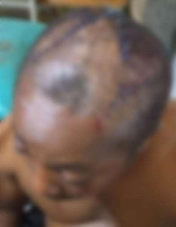 Twifo Praso: Man sustain cutlass wounds on his head over land ruling dispute