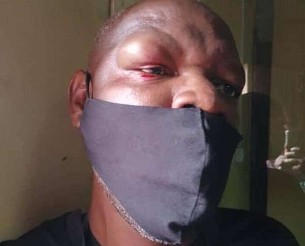 Zambian journalist Francis Mwiinga Maingaila is seen after he and another journalist were attacked by supporters of the ruling Patriotic Front. (Photo: Francis Mwiinga Maingaila)