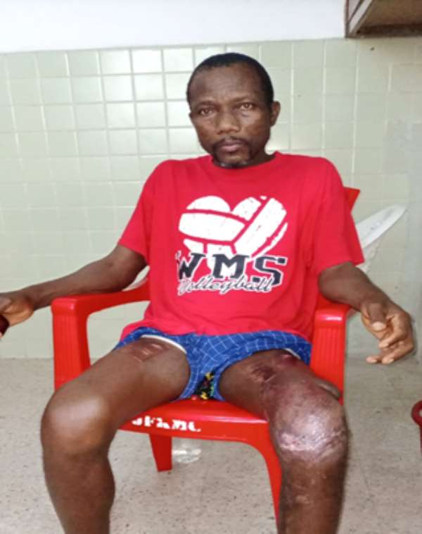 Dismissed Firestone worker Moses Flomo sits at the John F. Kennedy Medical (JFK) in Monrovia. The DayLight/Varney Kamara