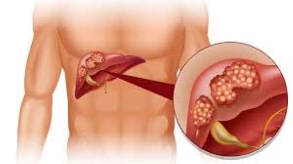 Liver Cancer (Hepatocellular Carcinoma)