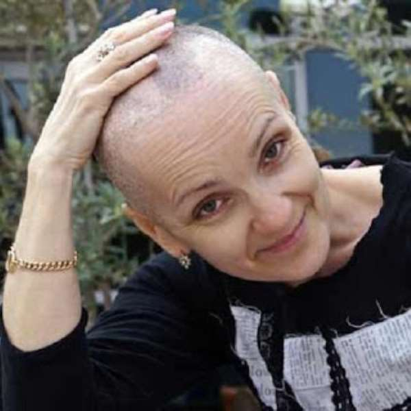 Complete hair loss after chemo, yet breast cancer survivors always wear a beautiful smile on the face