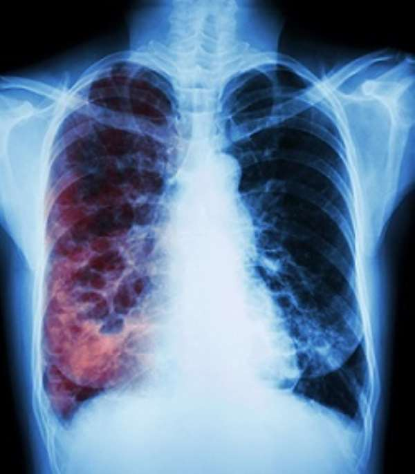 Image of chest X-ray of a patient with tuberculosis