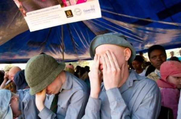 Malawi: People with albinism in urgent need of protection after horrific killing