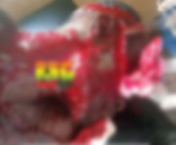 Awutu Senya West MP pays medical bills of NDC branch youth organiser 'butchered' for pocketing Ghc600