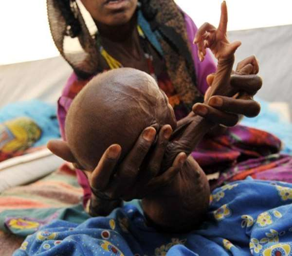 A malnourished child in the Sahel region in 2010.  By Sia Kambou (AFP/File)