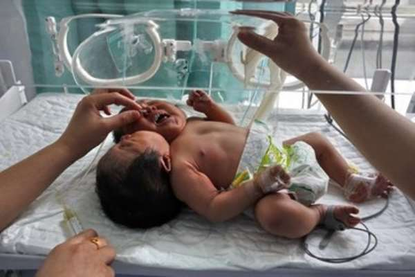 In this photo taken Monday, May 9, 2011, medical workers attend to conjoined twin babies with a single body.
