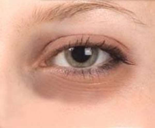 Dealing With Dark Circles Under Your Eyes