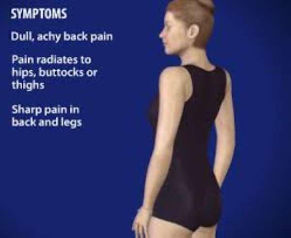 'The Failed Back-Syndrome'