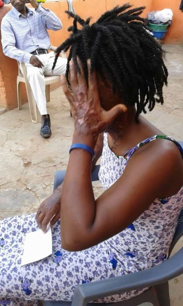 Acid attack: 22-year-old lady severely burnt, loses eye after ex-lover sprays her with acid