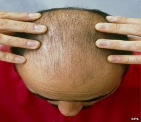 Health risk bald men have