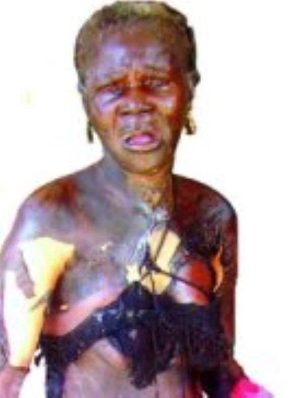 Madam Ama Hemmah after her ordeal