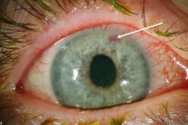 General information on glaucoma- The silent thief of sight