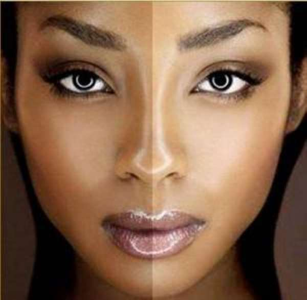 Skin bleaching, beauty option?