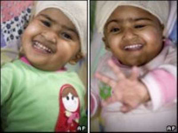 Separated Bangladeshi twins leave hospital