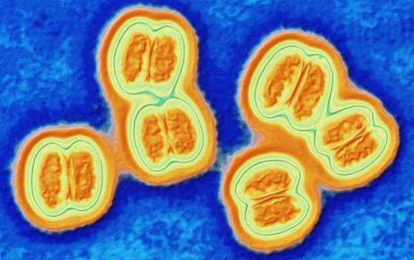 Democratic Republic of the Congo declares meningitis outbreak in north-eastern province