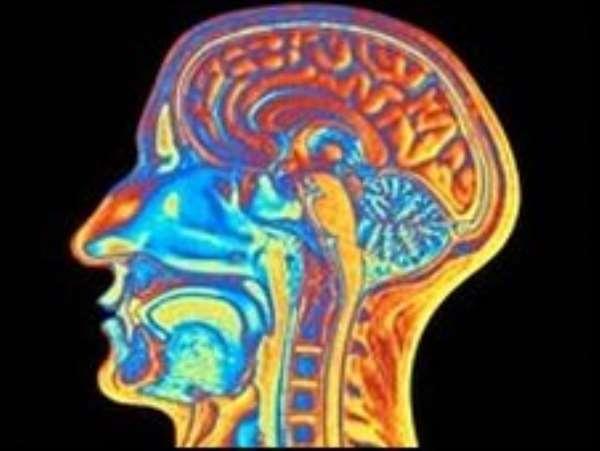 'People-person' brain area found