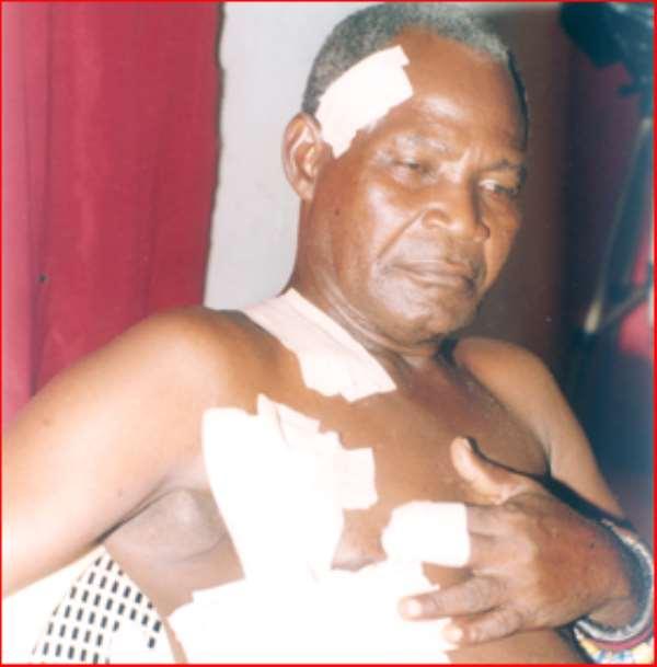 Bullet ridden! Baffour Kwadwo Abbam