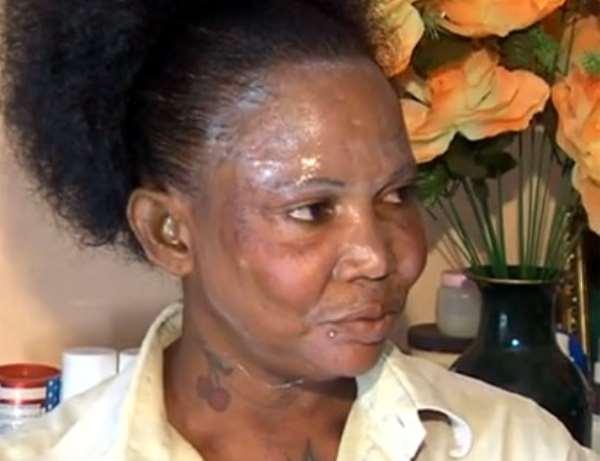 Skin Bleaching: The Silent Killer