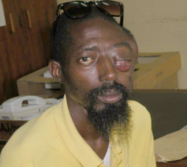 Man Loses Eye To Police Brutality
