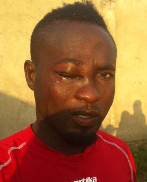 Swollen-eyed Joseph Tekyi Menson